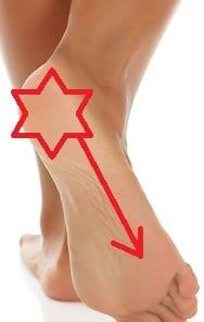 plantar fasciitis heel and foot pain