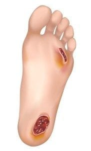 wounds and ulcers of the foot